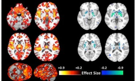 Machine Learning-Based Brain Imaging Unveils New Type of Schizophrenia