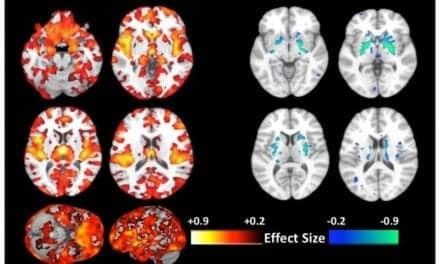 Machine Learning-Based Brain Imaging Unveils New Type of Schizophrenia