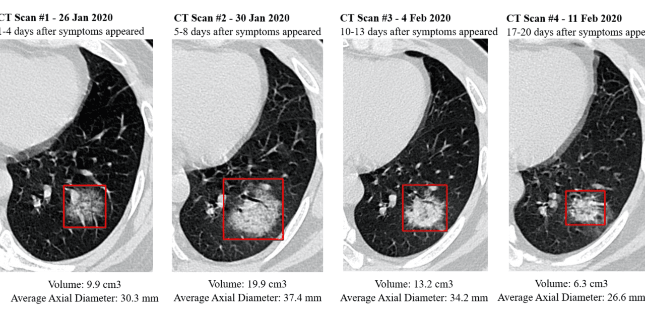 AI CT Scan Analysis for COVID-19 Detection and Patient Monitoring