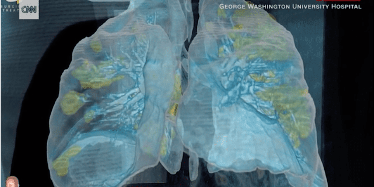 3D Virtual Reality Video Allows You to Fly through the Lungs of a Coronavirus Patient