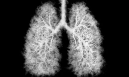Why is the cancer death rate going down? Look at lung cancer.