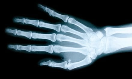 Computer Learning Model Accurately Predicts Osteoporosis From Hand Radiographs