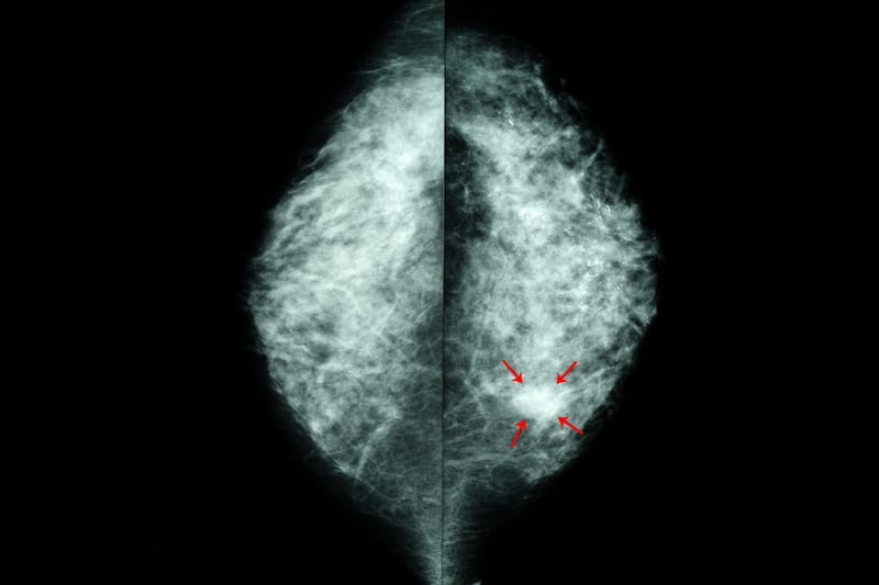 AI Improves Radiologists' Readings of Mammograms