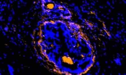 New Imaging Agent Illuminates Cancerous Tumors, Surrounding Cells