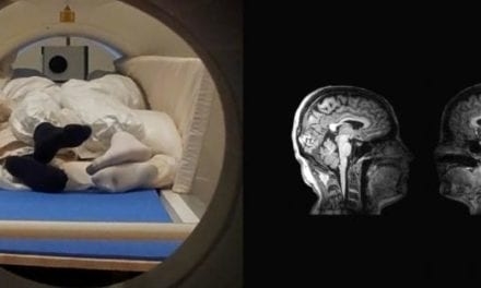 Couples' MRI Scans Investigate How the Brain Perceives Touching