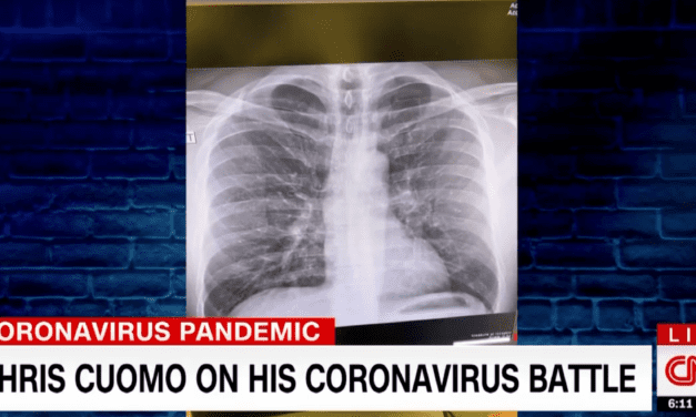 """CNN's Chris Cuomo Shares Chest X-Rays as He Battles Coronavirus: """"You Have to Fight to Keep It Out"""""""