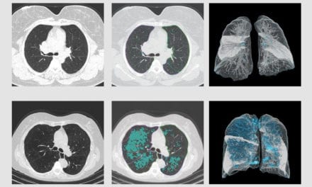 AI Could Aid Diagnosis of COPD, Other Lung Diseases from Chest Images