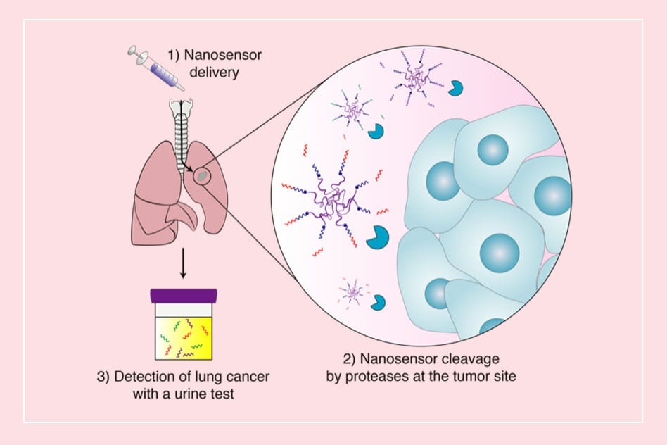 Urine Tests Could Replace CT to Detect Lung Cancer