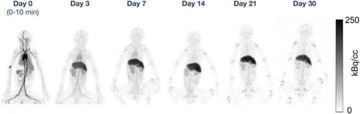 Total-Body PET Imaging Successfully Identifies Antibodies up to 30 Days after Injection