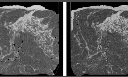 Phase-Contrast Imaging Could Improve Breast Cancer Diagnosis