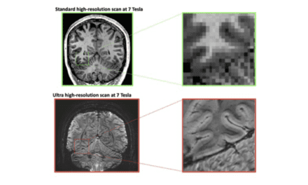 """High-res MRI Links Cognitive Abilities to """"Tree Ring"""" Layers in the Brain"""