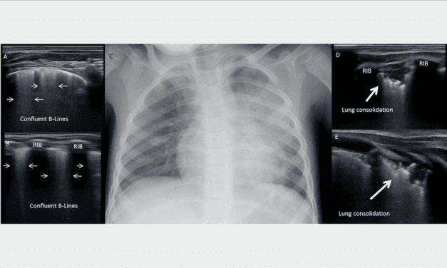 AAP Brief Outlines Benefits of Lung Ultrasound in Children with COVID-19