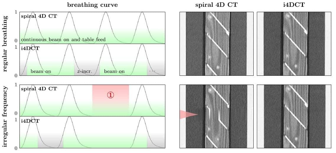 Intelligent 4D CT Reduces Image Artefacts