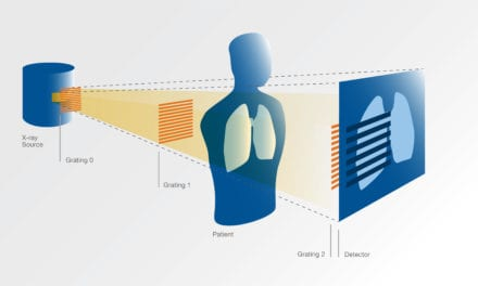New X-ray Method for COVID-19 Diagnosis Ready for Patient Testing