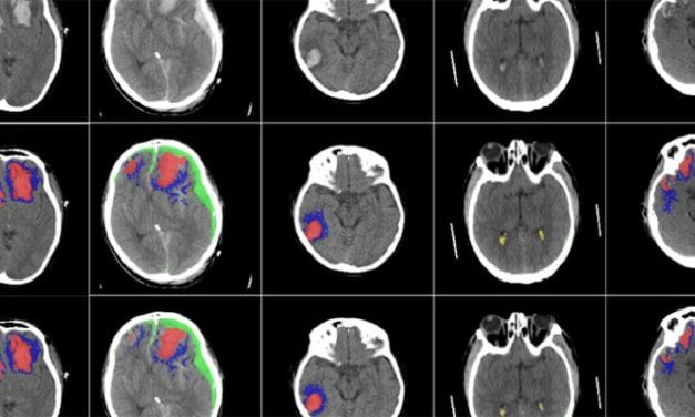 AI Successfully Used to Identify Different Types of Brain Injuries