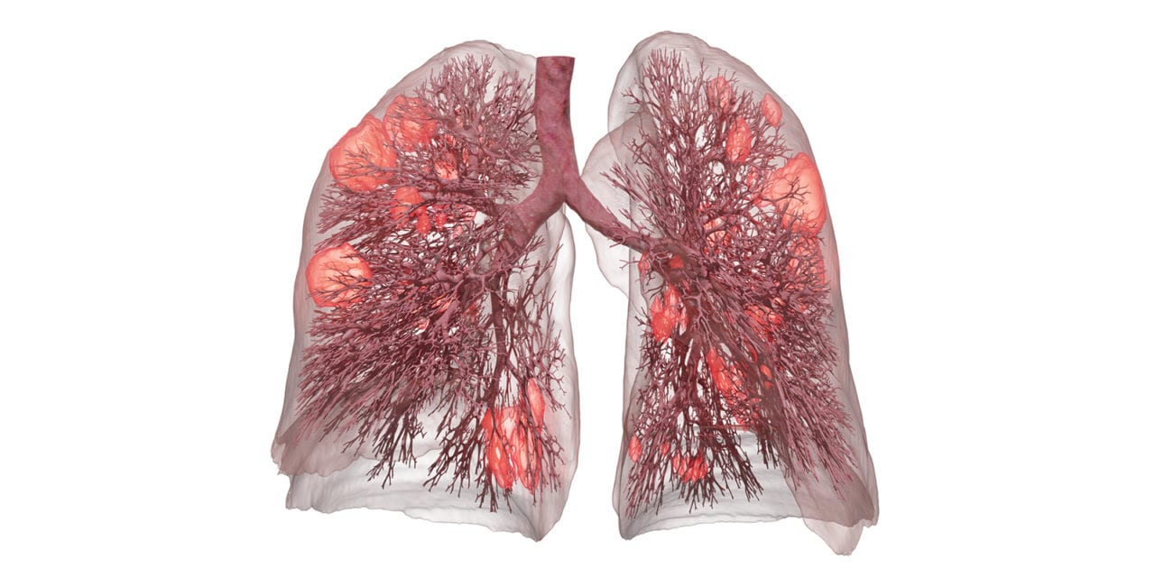 3D Lung Model Enables Safer Ventilation