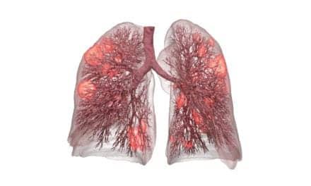 3D Lung Model Enables Safer Ventilation