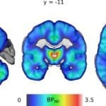 Age, Sex, and Smoking Influence Opioid Receptor Function in the Brain