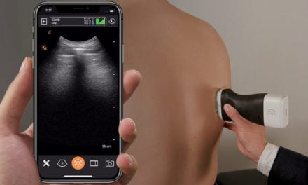 Canadian Researchers Develop Portable Ultrasound Scanner Network for COVID-19