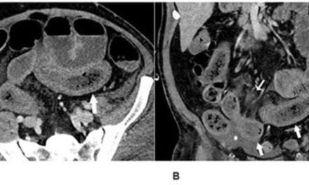 Imaging Reveals Bowel Abnormalities in Patients with COVID-19