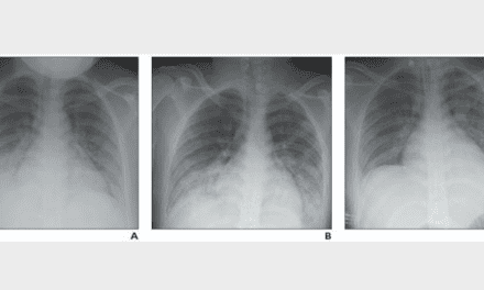 New Review Distinguishes Pediatric COVID-19, Other Lung Disorders in X-rays and CT