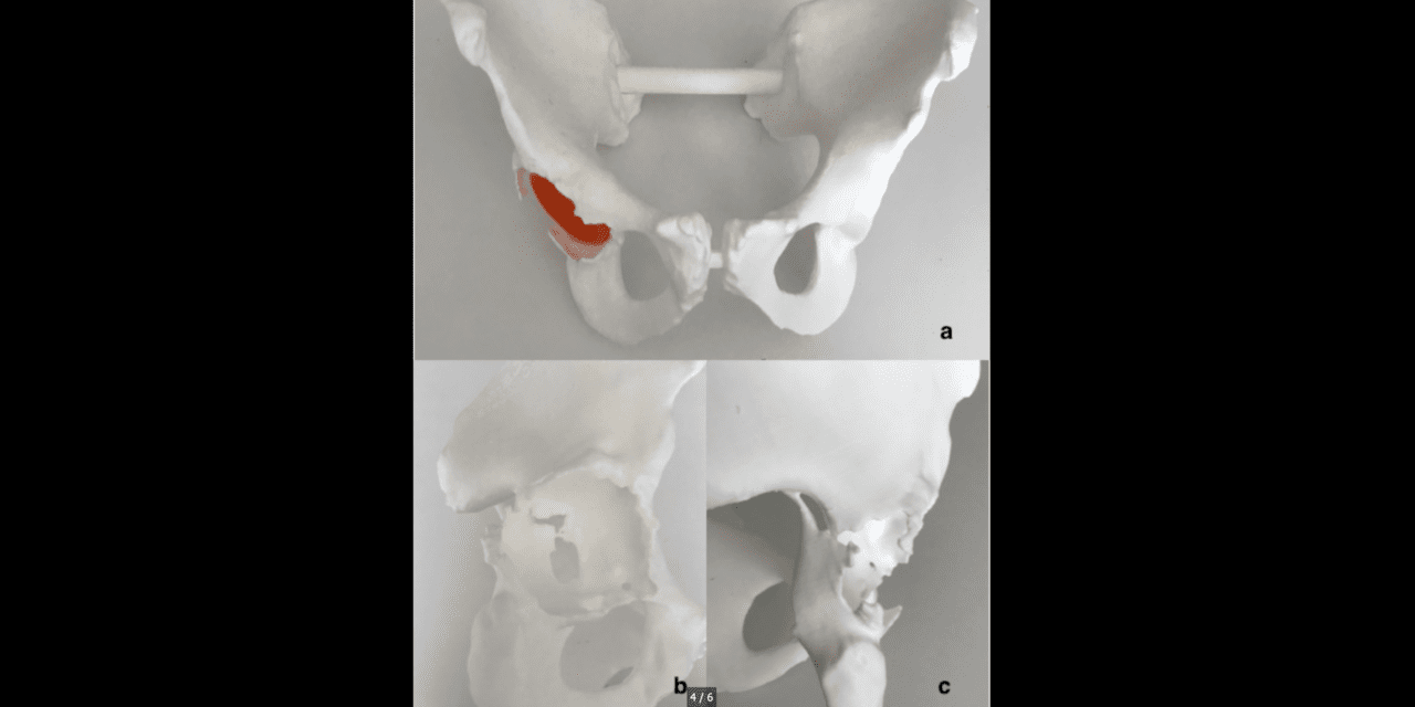 3D Printing Can Improve THA Diagnosis and Surgical Planning