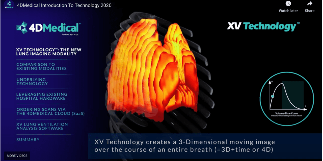 4DMedical's Lung Imaging Technology Receives FDA Clearance