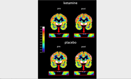 PET Study Reveals Why Ketamine Can Treat Depression