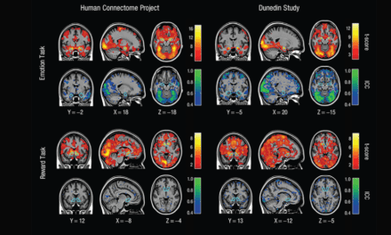 Studies of Brain Activity Aren't as Useful as Scientists Thought