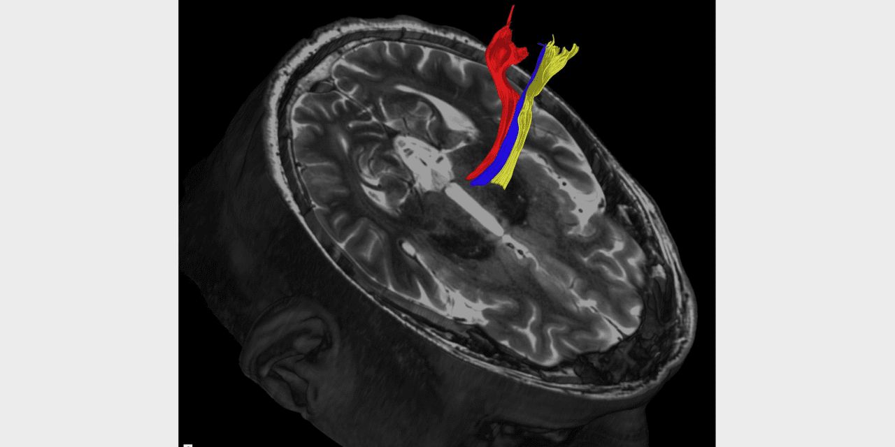 Advanced MRI Scans May Improve Treatment of Tremor, Parkinson's Disease