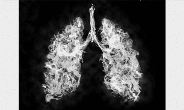 For Those at Risk for Lung Cancer, Low-Dose CT Scans Are Saving Lives