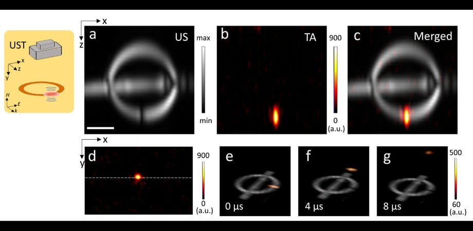 Hot Ring Produces Microwave-Powered Ultrasound Pulses Wirelessly