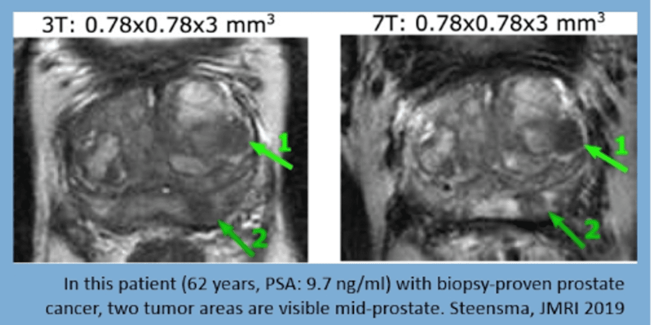 7T MRI Scanner Technology for Urology Presented at EAU 2020