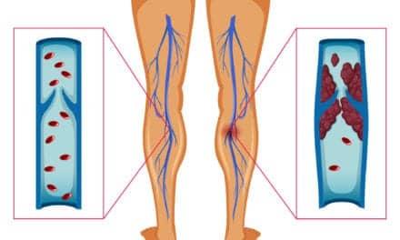 Dangerous Blood Clots Form in Leg Arteries of COVID-19 Patients