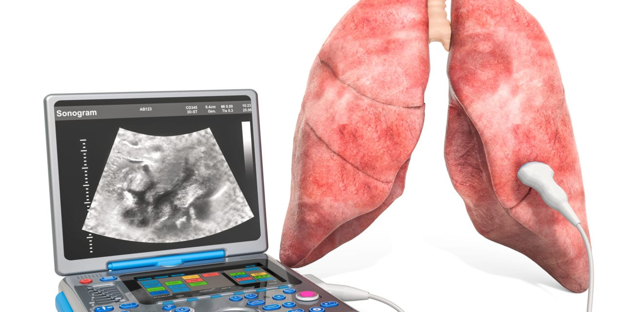 Lung Ultrasound Shows COVID-19 Duration, Severity