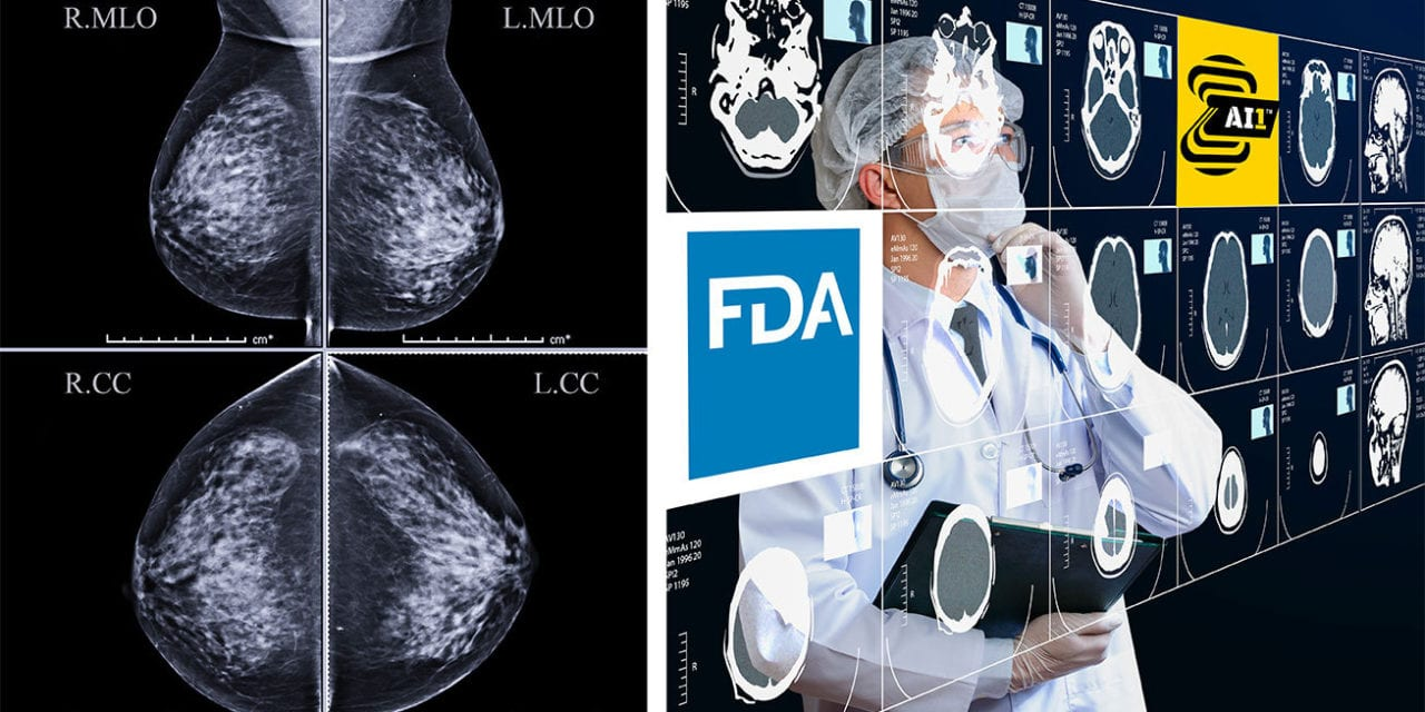 FDA Clears Zebra Medical Vision AI Tool for Mammography