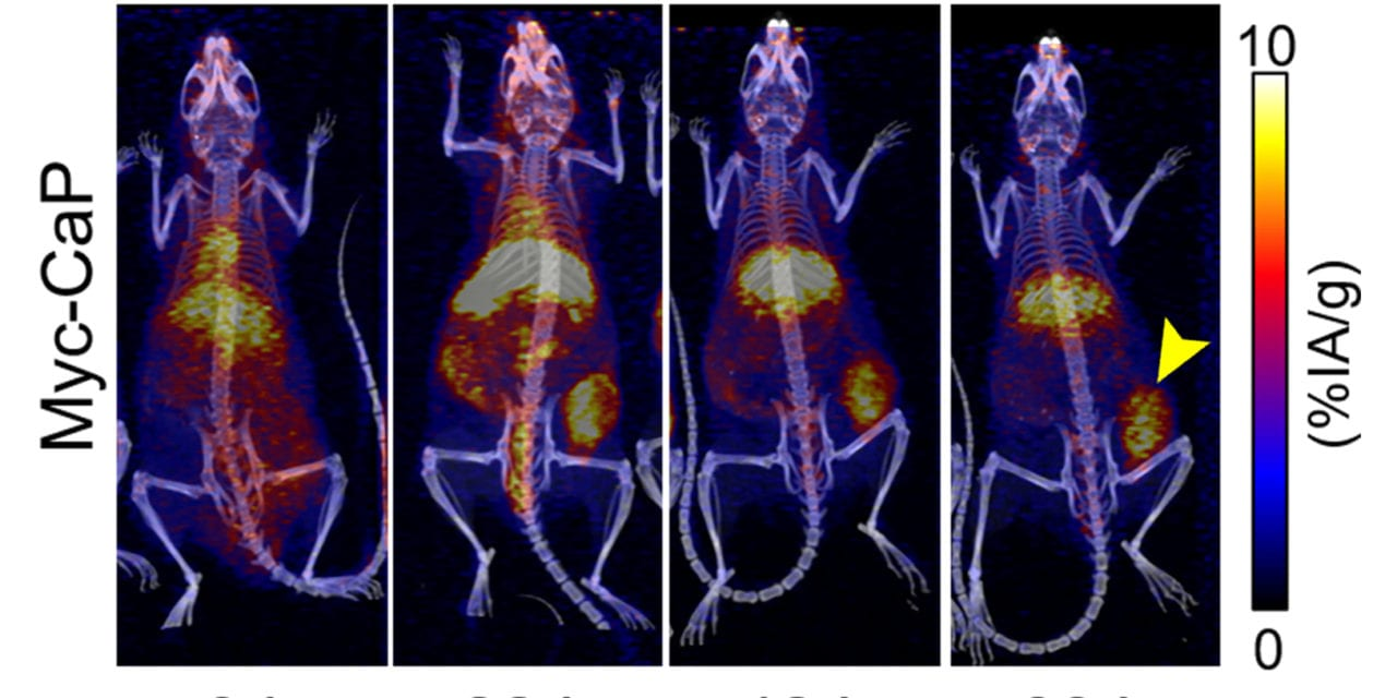 Targeted Radionuclide Therapy Enhances Prostate Cancer Response to Immunotherapies