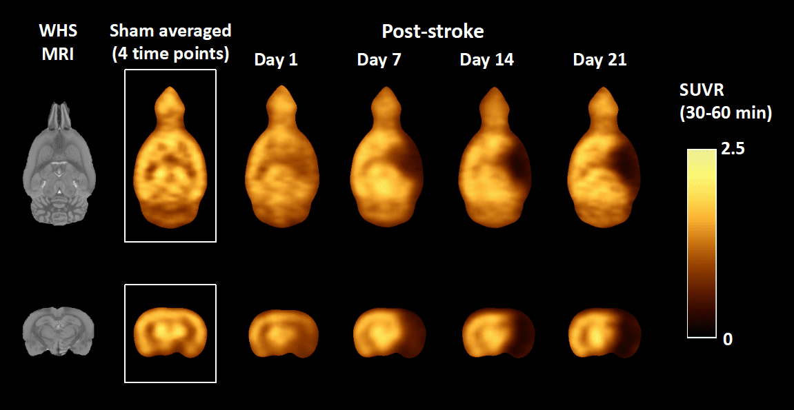 Novel Radiotracer Measures Synaptic Activity After Stroke