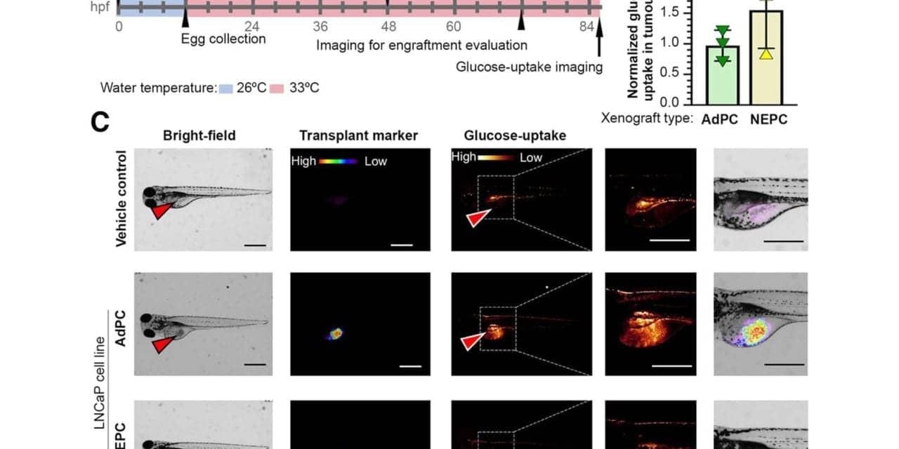 Genomic Signature Explains FDG-Avidity of PSMA-Suppressed Prostate Tumors