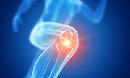 Novel Bone Imaging Approach Provides Insights into Knee Osteoarthritis