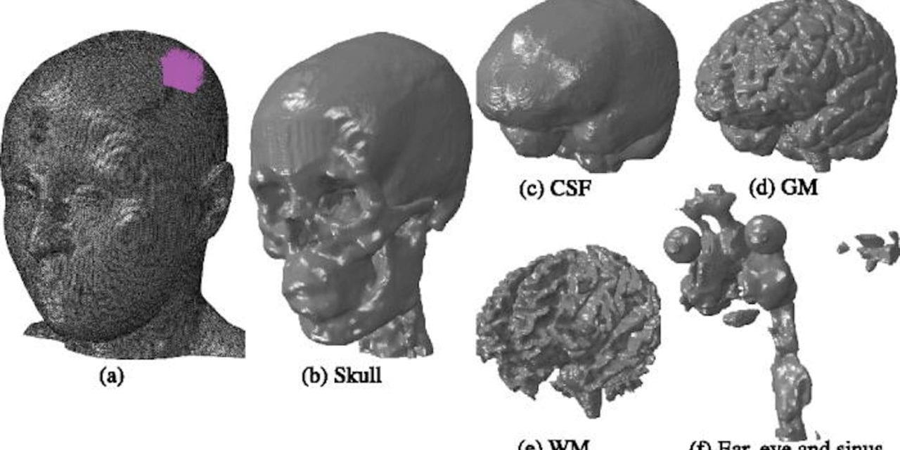Transcranial Focused Ultrasound Generates Skull-Conducted Shear Waves