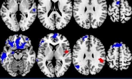 Neuroimaging Shows Which OCD Treatment Works Best