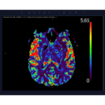 Arterys to Distribute Imaging Biometrics Medical AI Products