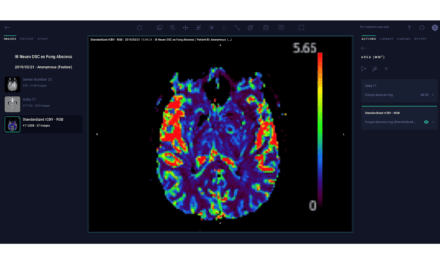 Arterys to Distribute Imaging Biometrics Medical AI Products