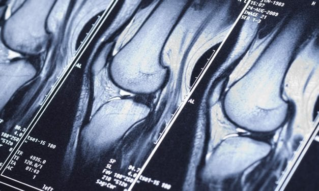 New Research Finds FastMRI Scans Generated with AI Are as Accurate as Traditional MRI