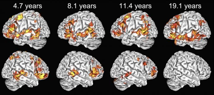 fMRI Reveals That Children Use Both Brain Hemispheres to Understand Language