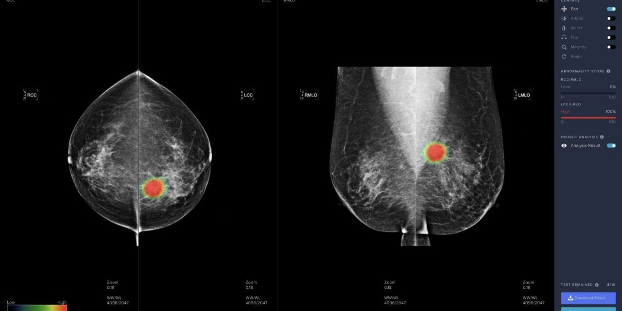 Recent Studies Examine Lunit AI in Breast Cancer Detection