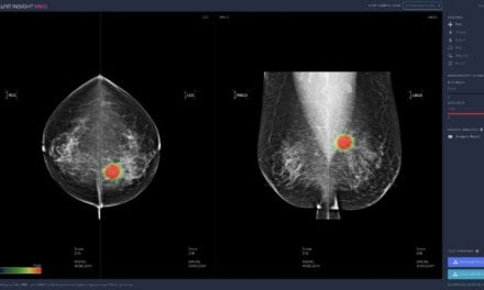 Recent Studies Examine Lunit AI in Breast Cancer Detection