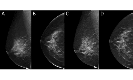 Pairing DBT with Automated Breast Density Measurements Leads to Fewer Recalls