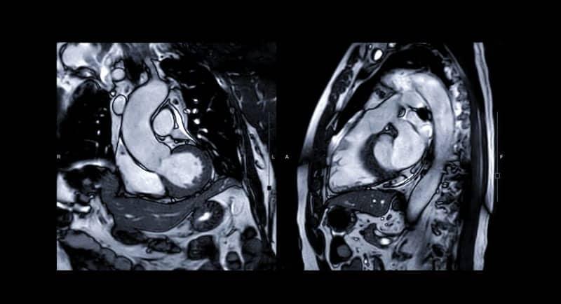 Cardiac MRI Effective in Identifying Myocarditis in Athletes